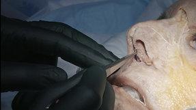 Non-Surgical Rhino Modulation Trailer