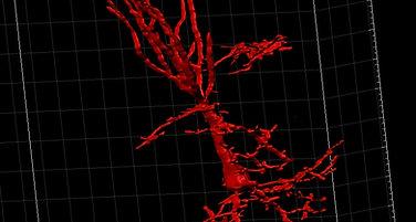 PV + Interneuron
