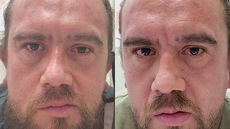 Case#2 Facial Paralysis