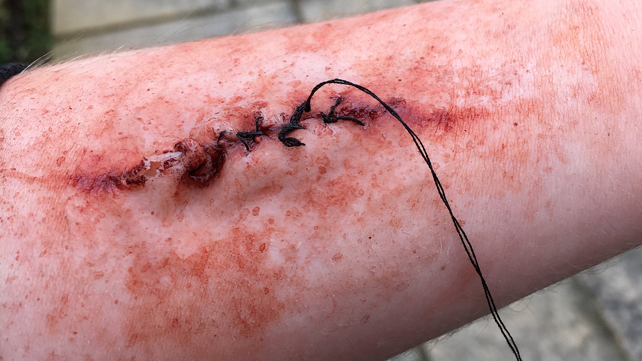 SFX Casualty Stitches