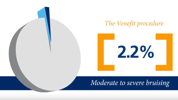 V-Procedure and Benefits