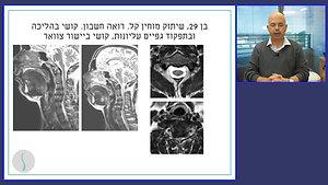 מילופטיה ורדיקולופטיה צווארית חלק שלישי - לחץ על חוט השדרה והשורשים הצרות תעלה ופריצות דיסק
