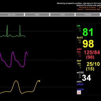 EKG/ICU Monitor