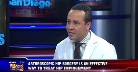 The Role of Hip Arthroscopy in Treating Hip Impingement