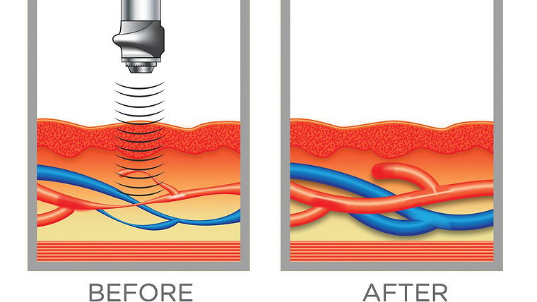SHOCKWAVE THERAPY FOR COMMON MEN'S HEALTH CONDITIONS