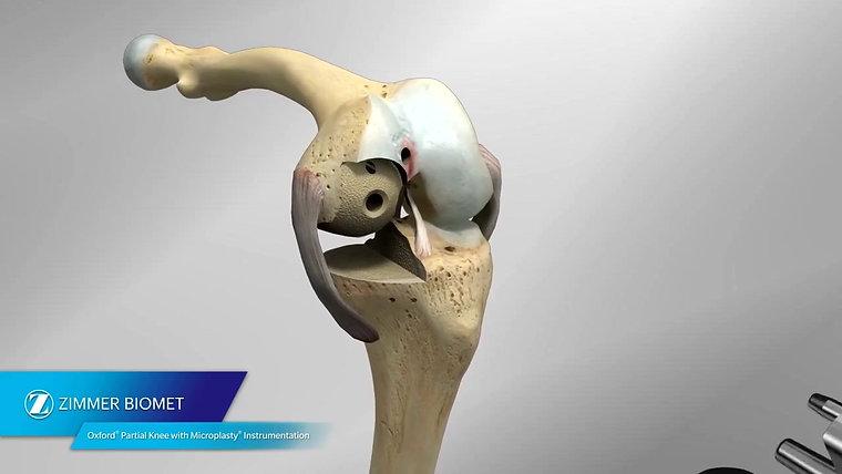 Prothèse de genou