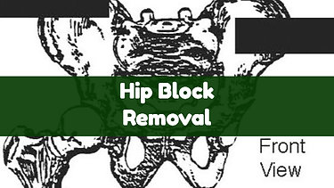 Hip Block Removal