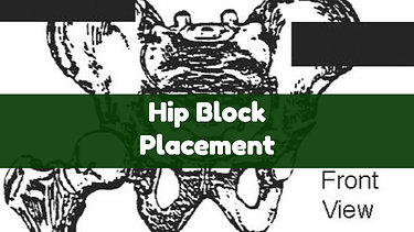 Hip Block Placement