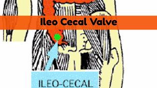 Ileo Cecal Valve on Self