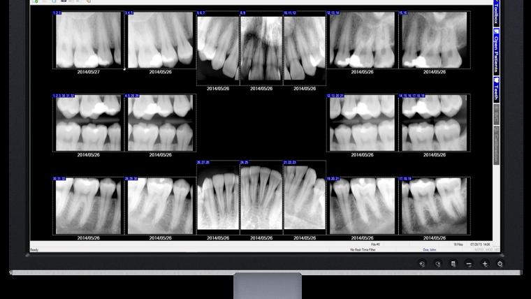 XrayVision Software Videos