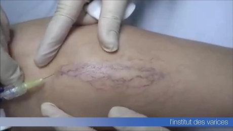 microsclérose mousse