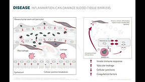 Cell Care Therapeutics: Macular Edema