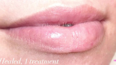 Permanent Make-up LIPS