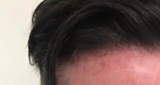 Hair Revive Hair Line