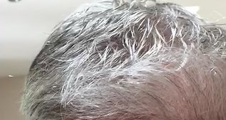 Hair Revive Hair Line 7