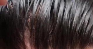 Hair Revive Hair Line 6