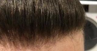 Hair Revive Hair Line 3