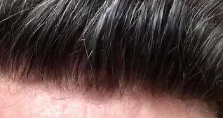Hair Revive Hair Line 5