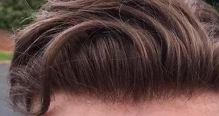 Hair Revive Hair Line 2