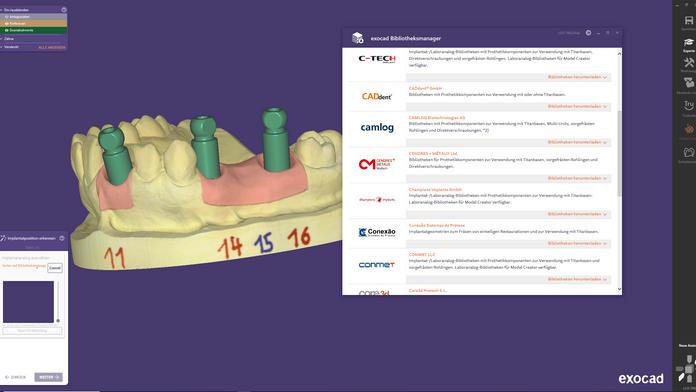 exocad DentalCAD 3.0 Neue Bibliotheken integrieren
