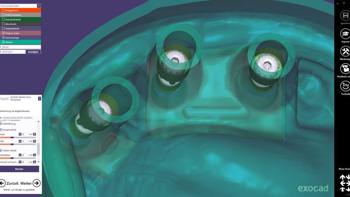 Die Herstellung eines Digitalen-Implantat-Modells (DIM)