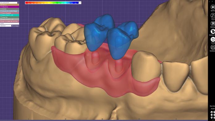 Die Konstruktion einer Interimsprothese im exocad DentalCAD ohne Zusatzmodule