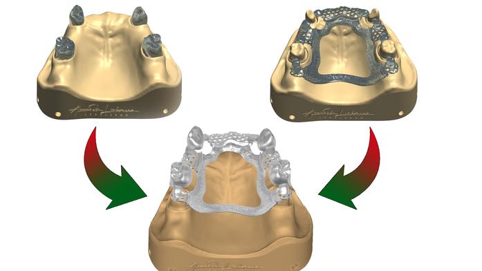 So kombinieren Sie Ihre Kronengestaltungen mit einer partiellen Plattengestaltung im 3Shape Dentaldesigner™