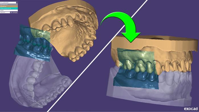 Modell- und Kieferscans in Okklusion stellen im exocad™