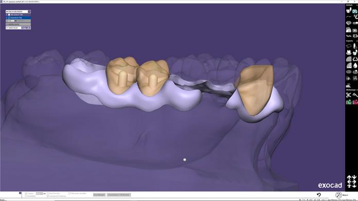 Die Konstruktion einer Interimsprothese im exocad DentalCAD und Modul PartialCAD