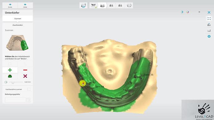 3Shape DD 2016: Erfolgreiches scannen mit ScanIt Dental 2015™ Teil 1