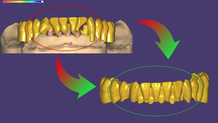 Fehlerfreie Kronenplatzierung im exocad DentalCAD