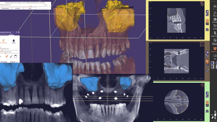 Die Segmentierung der Kieferhöhle im exoplan 3.0 Galway