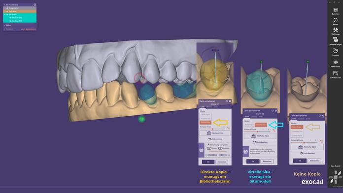 Zähne eines Kiefermodellscans im exocad™ DentalCADvirtuell extrahieren