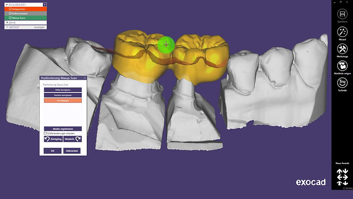 Verblockte anatomische Kronen auf Basis eines Waxups realisieren