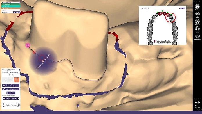 Lernvideo: Die Verwendung von Waxup- und Situscans bei einer Sekundärgerüstgestaltung im exocad™