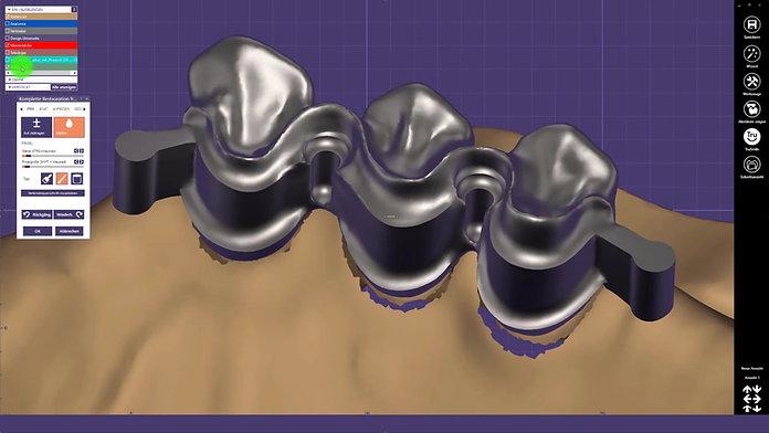 Die Konstruktion von verblockten Kronen mit Umlauffräsung und Interlock im exocad™