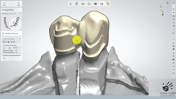 3Shape Dental System 2016: Die Kronenkonstruktion mit Umlauf und Interlock