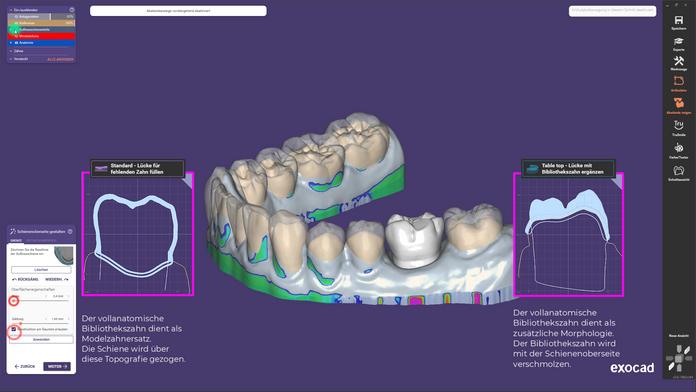 Die Konstruktion einer Tabletop-Schiene im exocad™ DentalCAD3.0 Galway