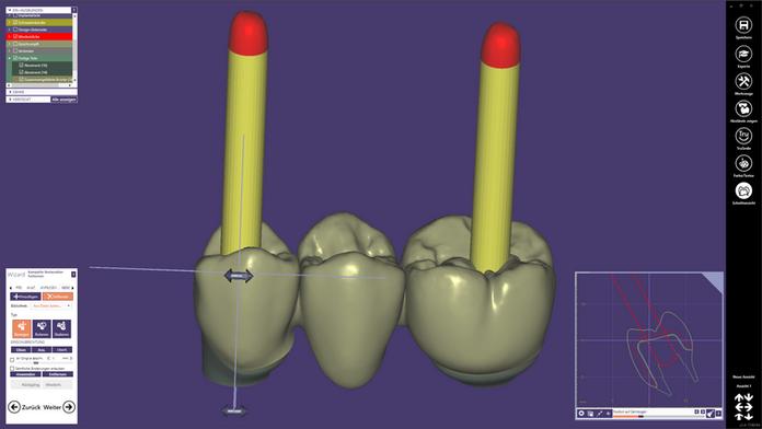 Schraubenkanäle nachträglich ausstanzen im exocad DentalCAD