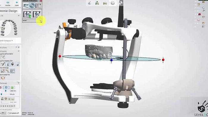 3Shape Dentaldesigner Einstieg und erste Konstruktionen