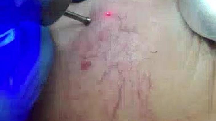 Blauman blue laser telangiectasia removal
