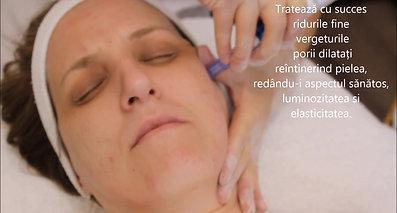 Mezoterapie microace