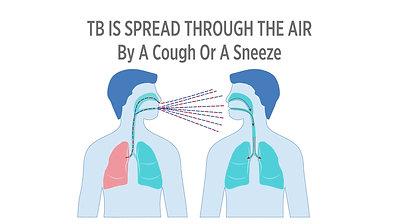 Tuberculosis - English