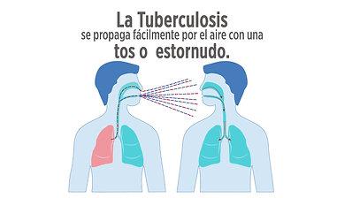 Tuberculosis - Spanish