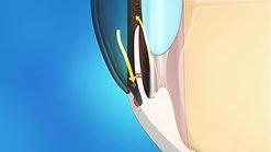 Laser Iridotomy