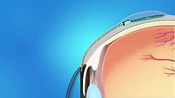Glaucoma Drainage Implant