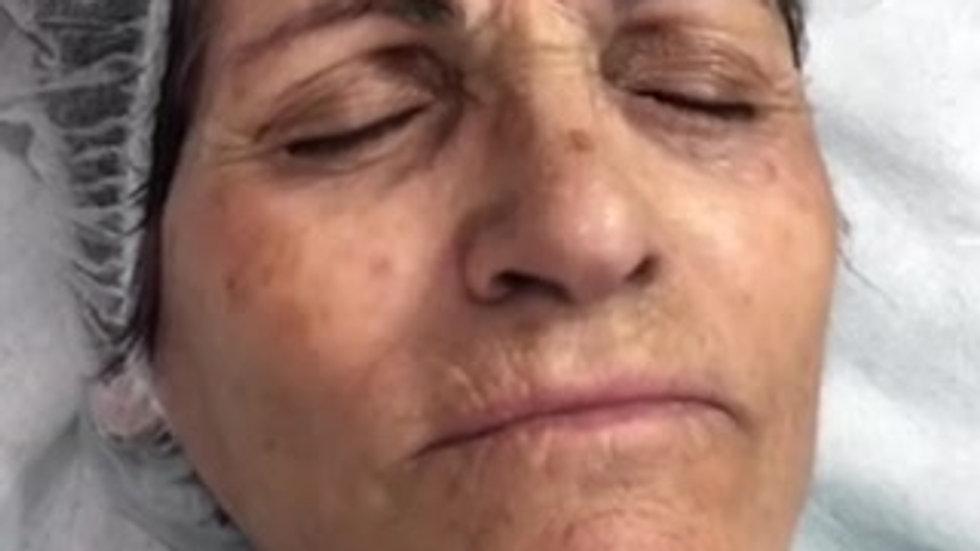 Picolaser for wrinkles and pigmentation