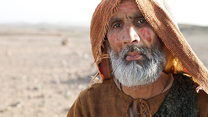 A Man with Leprosy