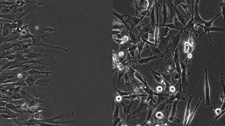 Bev-Resistant vs. Bev-Naive GBM cells invading