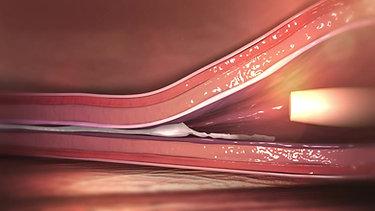 Tratamiento de varices con Cianoacrilato